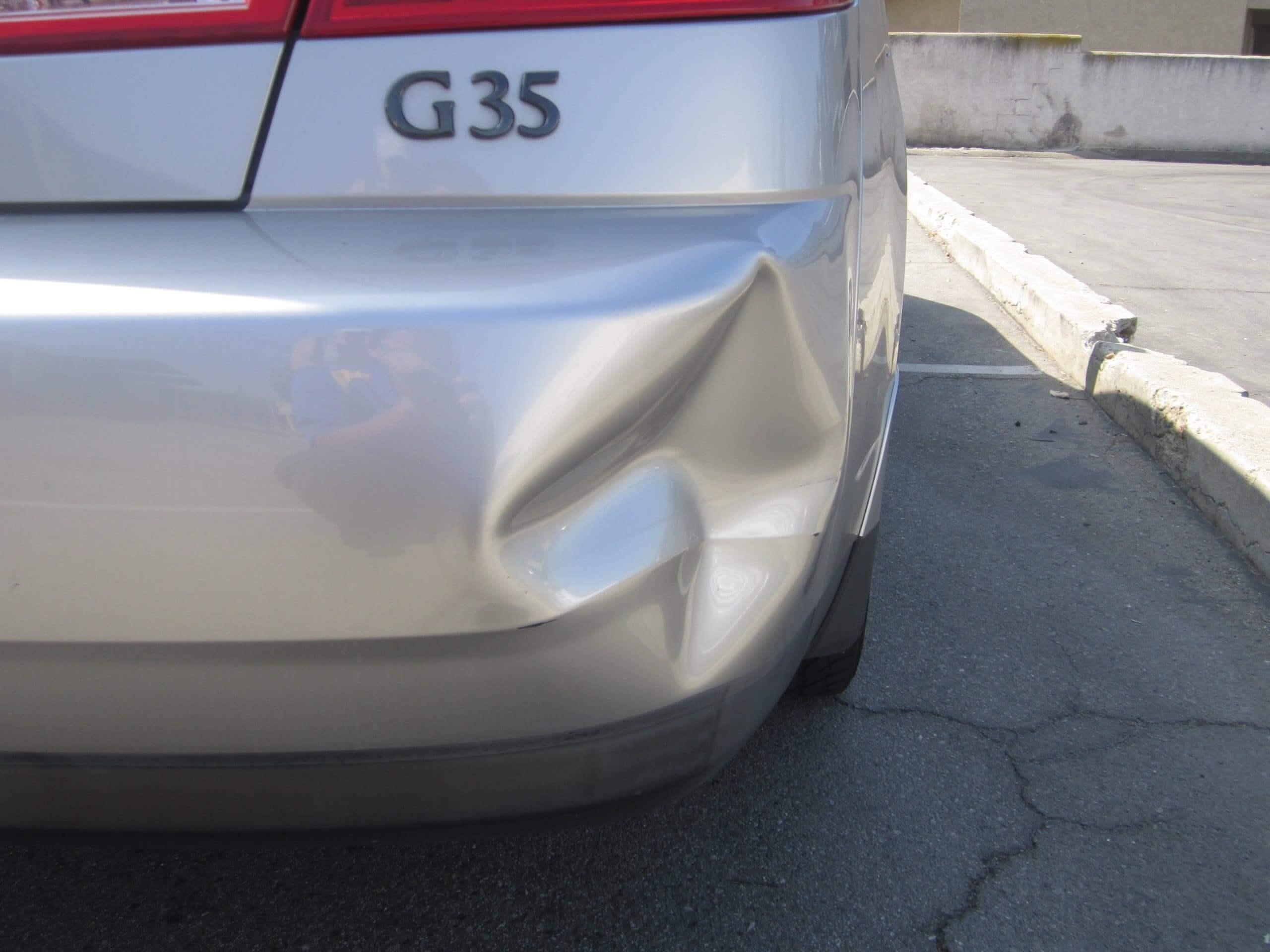 G35 Dent